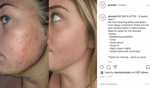 Kiwi brand Glow Lab is changing the face of beauty advertising