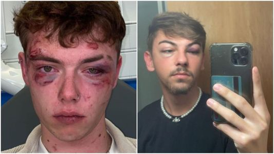 Young gay men share horrifying stories amid rising UK hate crimes
